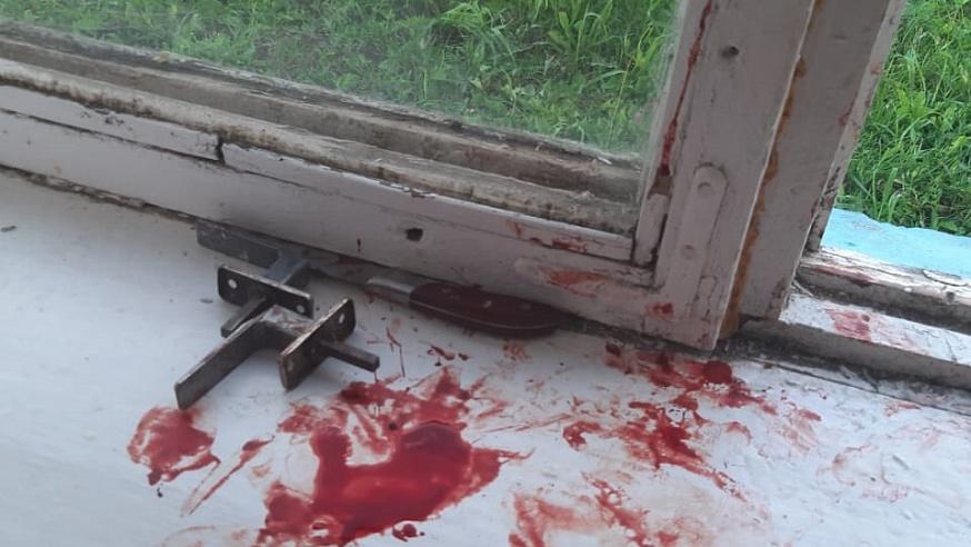 Женщина перерезала сожителю сонную артерию кухонным ножом